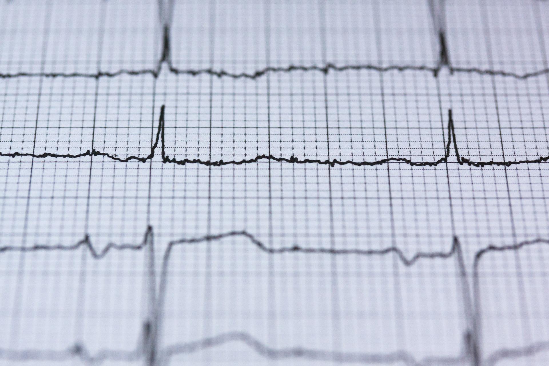Pracownia diagnostyki nieinwazyjnej kardiologicznej